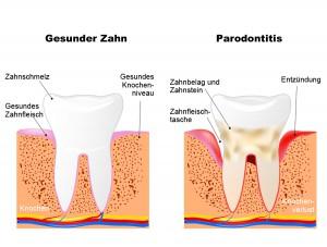 Parodontitisbehandlungen